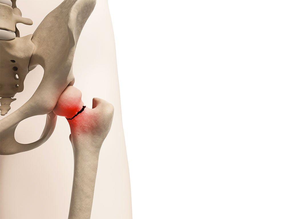 Patologie dell'anca