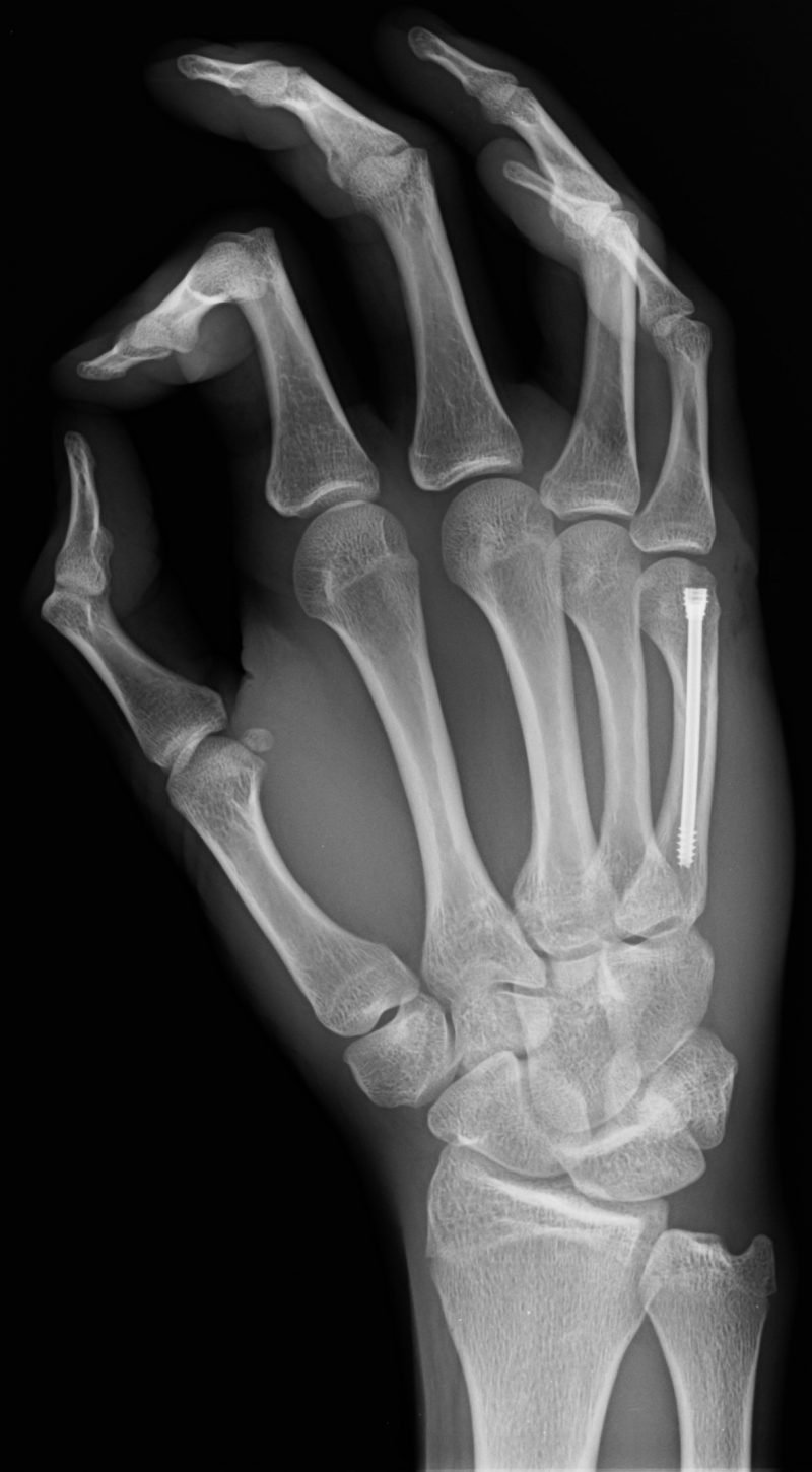 Percutaneous intramedullary screw fixation for phalanges and metacarpals fracture