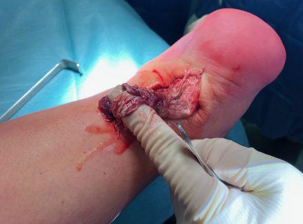 Rottura del tendine di Achille. Valutazione clinica e trattamento